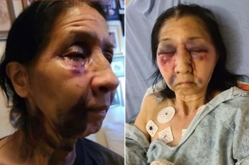 Grandmother brutally beaten on LA bus by attacker who thought she was Asian
