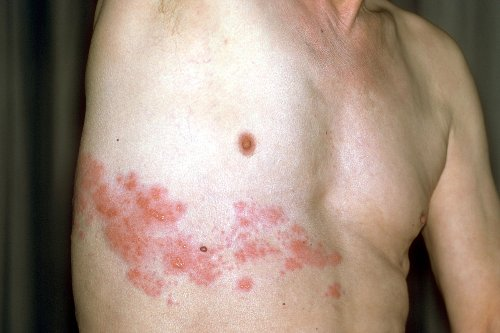 Herpes infection possibly linked to COVID-19 vaccine, study says