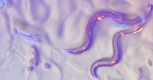 How Do Blind Worms See the Color Blue?