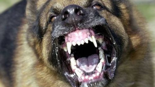 Victim of Hawke's Bay dog attack says owners must take responsibility - NZ Herald