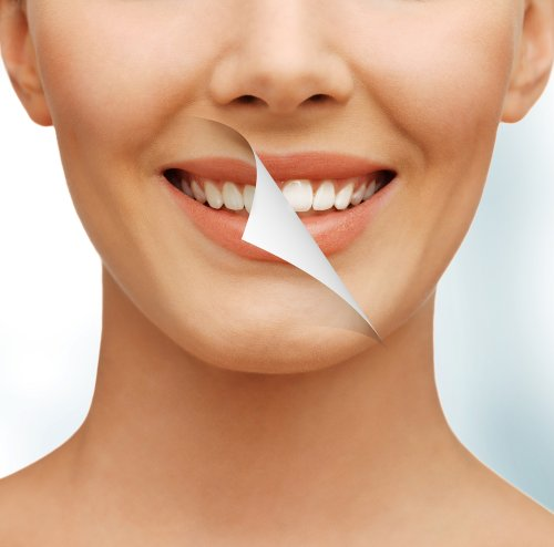 The Best Whitening Solution for Sensitive Teeth
