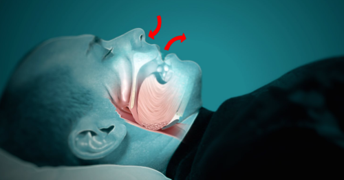 9 Things You Need To Do To Stop Snoring