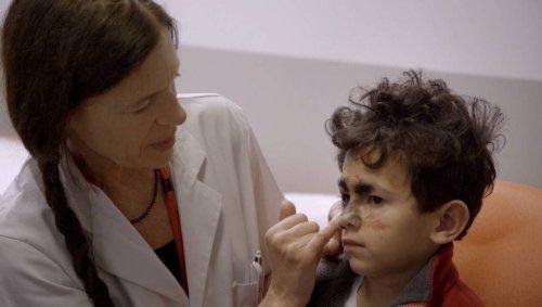 Enfants aux visages différents : ils témoignent de leur combat quotidien sur « France 5 »