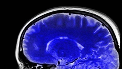 Une nouvelle étude suggère que le Covid-19 endommagerait le cerveau de malades, même asymptomatiques