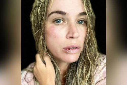 Teddi Mellencamp 'busted open' her face in scary fall at home