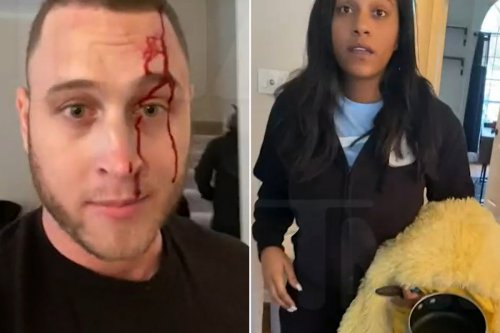 Chet Hanks ends up bleeding after fight with ex-girlfriend Kiana Parker