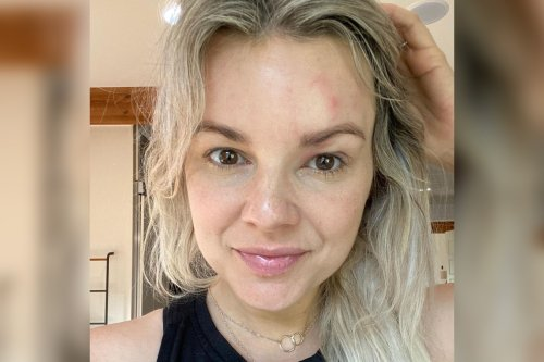 Former 'Bachelorette' Ali Fedotowsky diagnosed with shingles