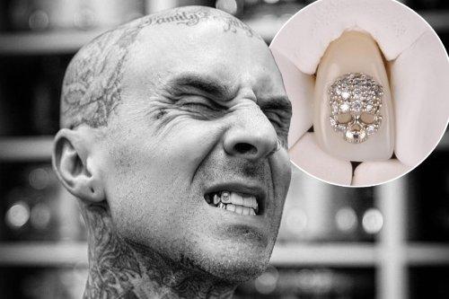 Travis Barker drops $8K on skull-shaped tooth gem