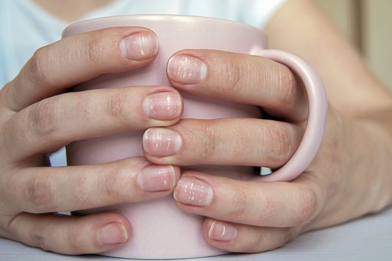 What Causes Those White Spots on Your Nails?
