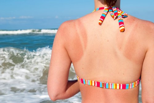 How to Prevent Peeling from a Sunburn