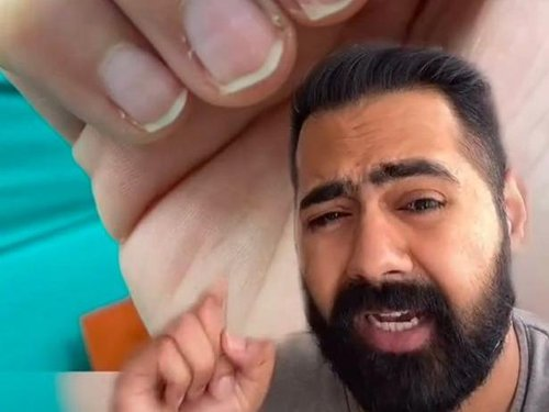 Doctor says change in your fingernails could hint if you've already had Covid-19 - News Break