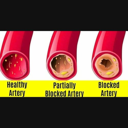 Patch User Profile for 10 Best Foods That Unclog Arteries Naturally