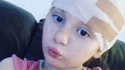 Port Glasgow teenager left with nerve damage for life urges us to ditch wax candles on Halloween