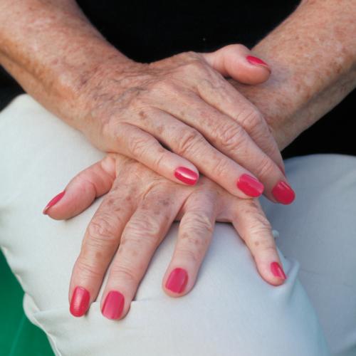 Altersflecken: Mit zwei natürlichen Zutaten wirst du sie schnell los