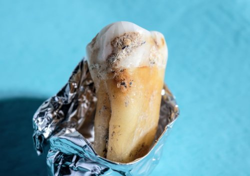 Ancient dental plaque shows humans have always loved carbs