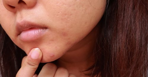 Everything You Need to Know About Treating Cystic Acne, According to Dermatologists