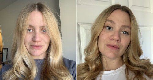 What No One Ever Tells You About Pregnancy Skin: Prepare For Breakouts
