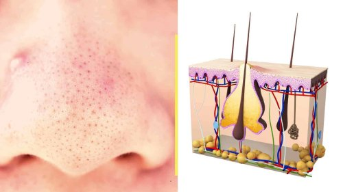 12 Natural Blackhead Remedies To Try At Home >>>