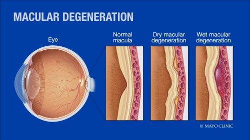 Macular Degeneration Frozen Shoulder Regenerative Cartilage Repair