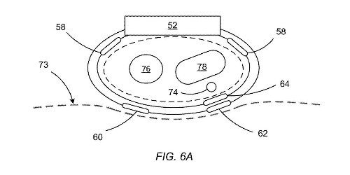 Apple wants to monitor your blood pressure