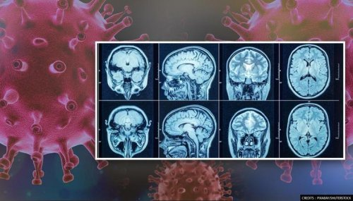 COVID-19 patients suffer loss of brain's grey matter that monitors cognitive skills: Study