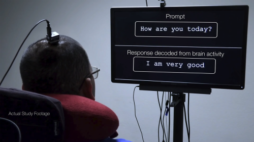 """Brain Implant Allows Paralyzed Man to """"Speak"""" Full Sentences"""