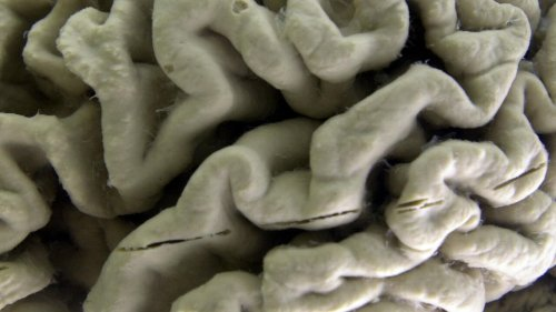 EU scientists reveal long-term brain damage caused by Covid