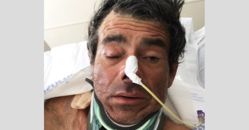 He can't remember his name or where he's from. A California hospital hopes someone can identify him.