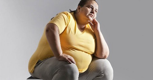 Fatty liver disease linked to weight gain is on the rise: Are you at risk?