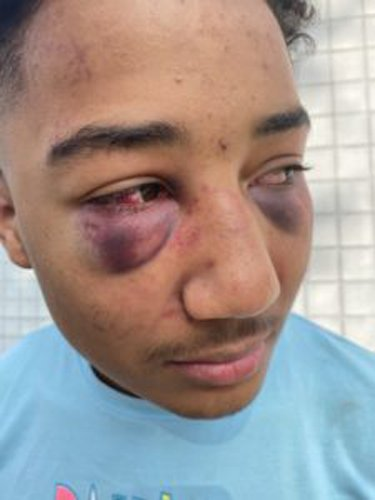 Federal lawsuit accuses officers of 'viciously' beating Black teen