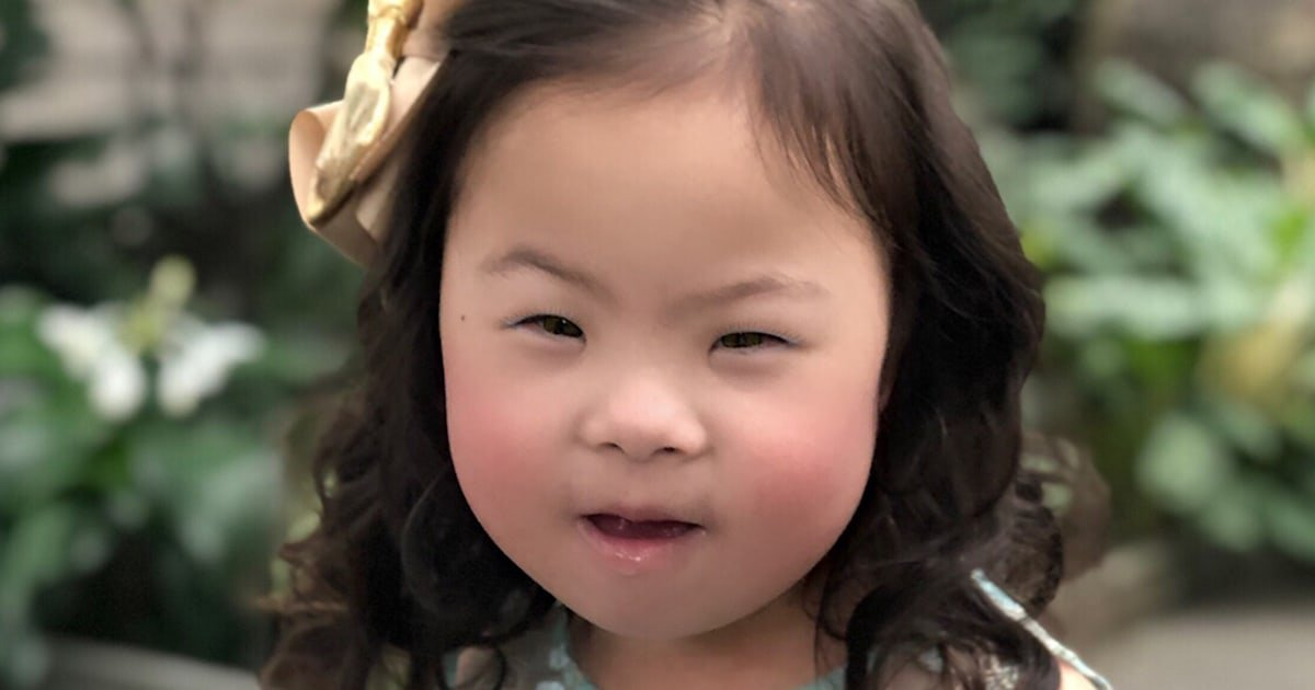 After being dismissed by doctors, mom of child with Down syndrome makes a discovery
