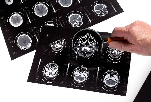 How UTIs can affect the brain