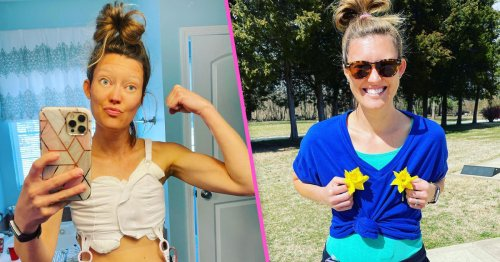 I Got Explant Surgery To Try To Improve My Health––It Worked