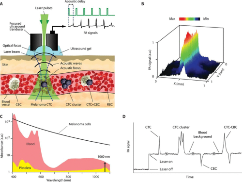In vivo liquid biopsy using Cytophone platform for photoacoustic detection of circulating tumor cells in patients with melanoma