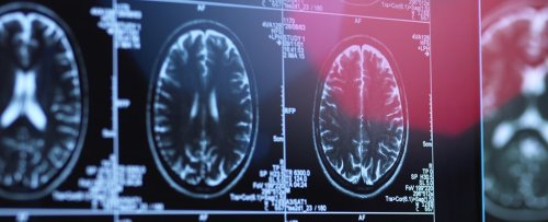 Subtle Brain Thinning During Teen Years Linked to Increased Risk of Psychosis