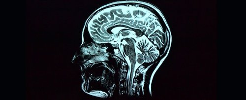 Even Mild COVID-19 Can Affect The Brain, And We Don't Know How Long It Lasts