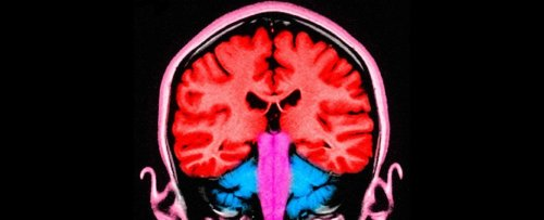 6 Months After Surviving COVID, 1 in 3 Have Neurological or Psychiatric Problems