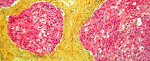Most Women at High-Risk of Breast Cancer Are Unaware of Preventative Medicines