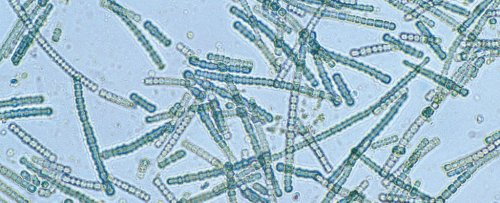 Meet 'Very Fast Death Factor' - The Algal Toxin Scientists Are Finding in Our Air