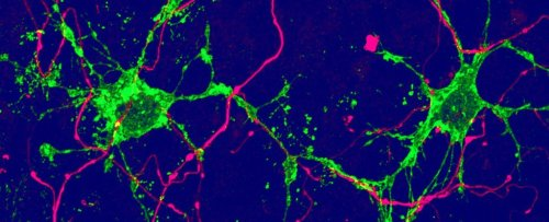 Two Previously Unknown Brain Cell Types Have Been Discovered in Mouse Study
