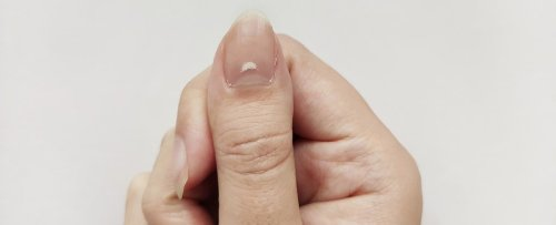 Reports Are Emerging of 'COVID Nails'. Here's What You Need to Know