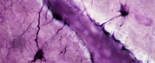Scientists Find a Blood-to-Brain Pathway in Mice That Could Be Behind Alzheimer's