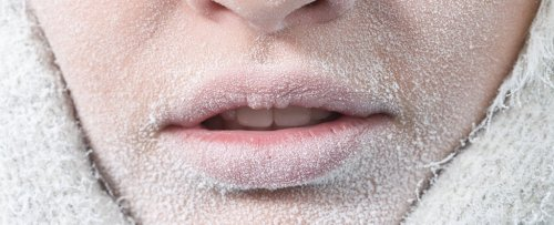 40 Years Ago, a Woman Famously Survived Being 'Frozen Solid'. Here's The Science