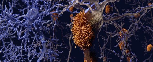 Scientists Have Identified Four Distinct Types of Alzheimer's And What They Do to Us