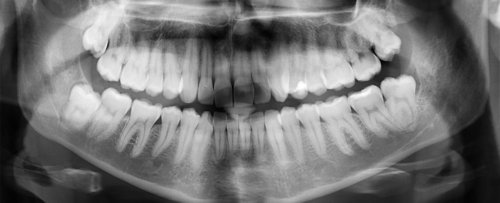 Ingeniously Simple Dental Treatment Could Heal Tooth Cavities Without Any Fillings