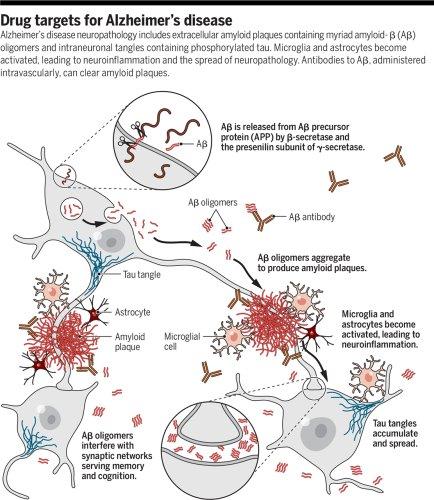 Treatments for Alzheimer's disease emerge