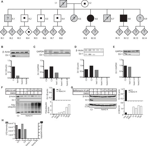 A patient-based model of RNA mis-splicing uncovers treatment targets in Parkinson's disease