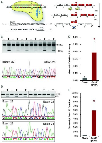 In vivo genome editing improves muscle function in a mouse model of Duchenne muscular dystrophy