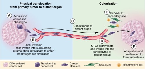 A Perspective on Cancer Cell Metastasis