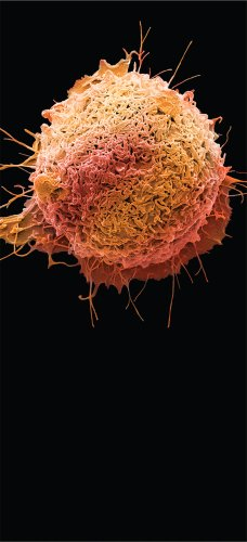 Imaging cancer cell by cell